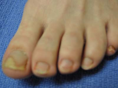 HNLC Patient Before - Left Foot