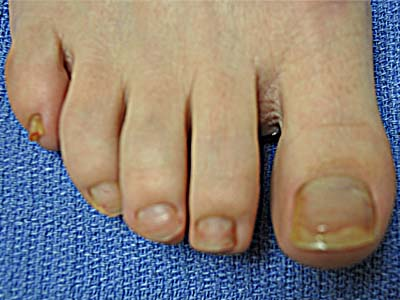 HNLC Patient Before - Right Foot