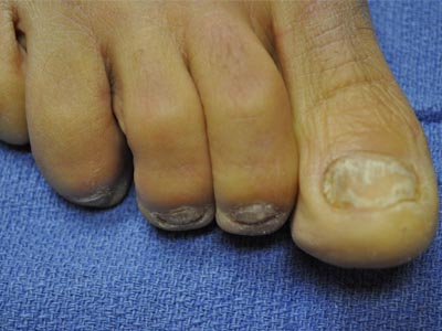 HNLC Patient - Right Foot Before