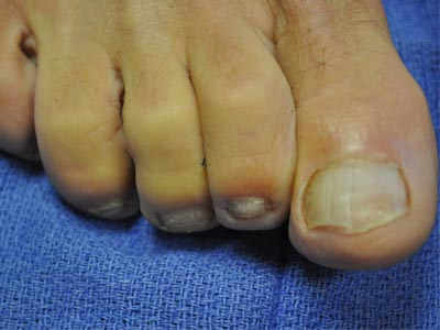 HNLC Patient - Right Foot After