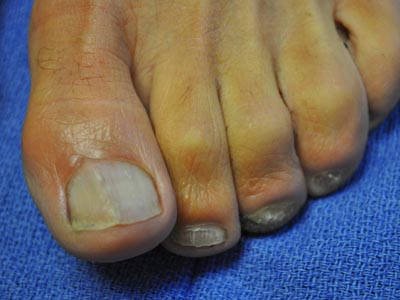 HNLC Patient - Left Foot After